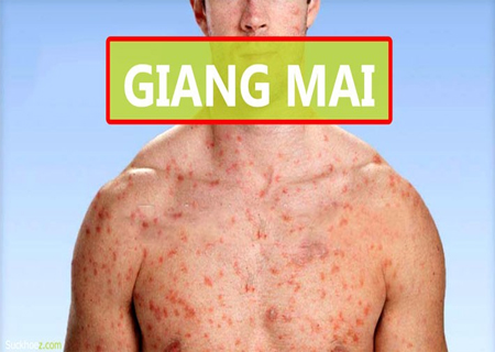 Giang mai là căn bệnh lây nhiễm ở cả nam giới và nữ giới