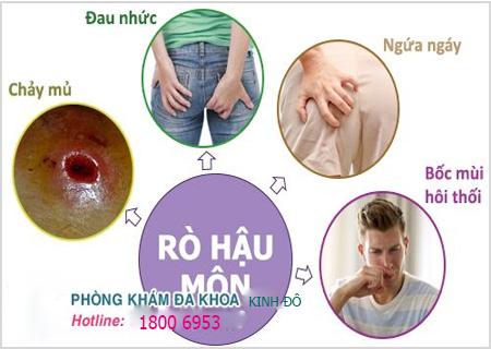 Rò rỉ hậu môn là biểu hiện của nhiều bệnh nguy hiểm