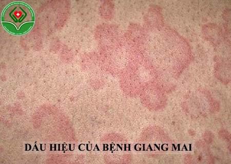 dấu hiệu của bệnh giang mai