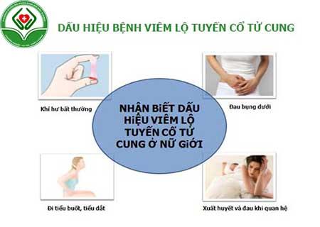 dấu hiệu của bệnh viêm lộ tuyến cổ tử cung