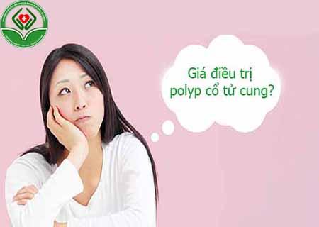 giá điều trị polyp cổ tử cung