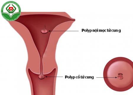 Bệnh polyp tử cung là gì