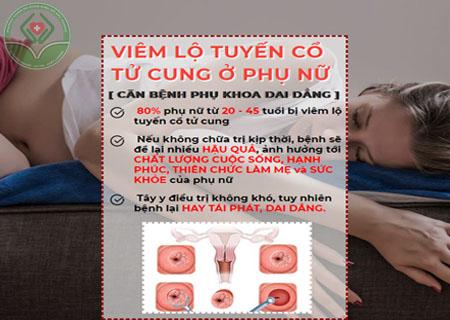 Cần hiểu đúng về bệnh viêm lộ tuyến cổ tử cung