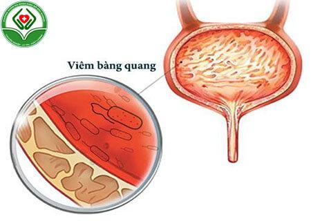 Bệnh viêm bàng quang là gì