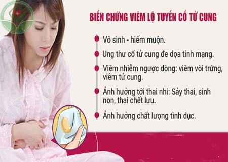 Viêm lộ tuyến cổ tử cung cần chữa trị đúng phương pháp