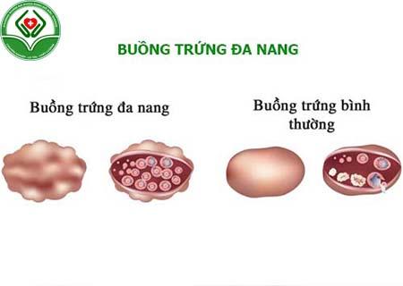 buồng trứng đa nang là gì