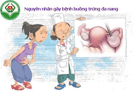 Nguyên nhân gây bệnh buồng trứng đa nang