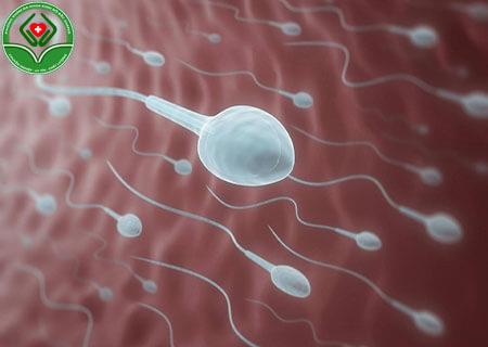 Nguyên nhân nào khiến nam giới không có tinh trùng