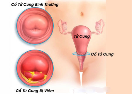 Tìm hiểu bệnh viêm cổ tử cung