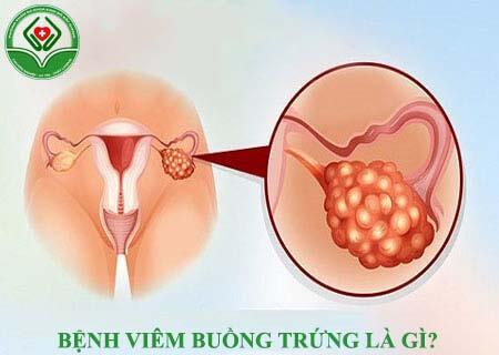 viêm buồng trứng là gì