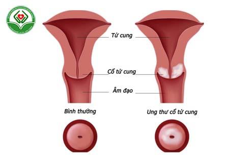 Viêm lộ tuyến gây ung thư cổ tử cung
