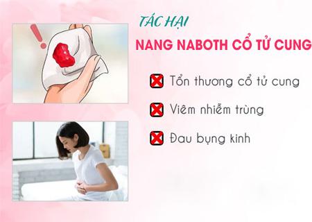 Naboth tử cung gây ra các biến chứng vô cùng nguy hiểm