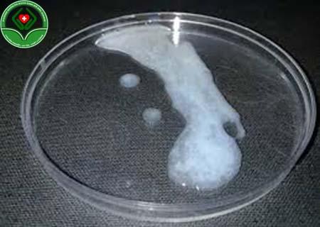 tinh trùng không hóa lỏng là sao