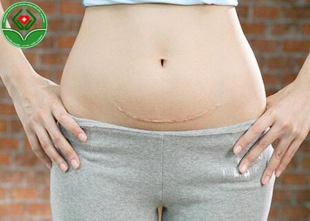 Sinh mổ có đặt vòng tránh thai không