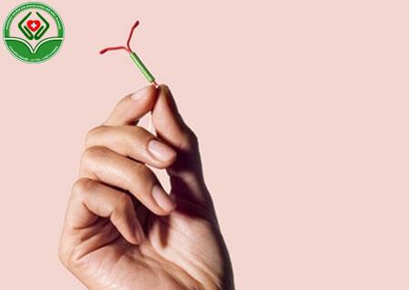 Tổng quan về thủ thuật đặt vòng tránh thai