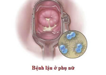 Biểu hiện bệnh lậu giai đoạn đầu ở nữ giới