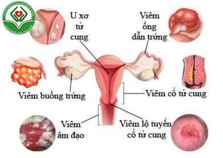 Những bệnh phụ khoa thường gặp ở nữ giới
