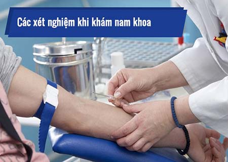 khi nào cần xét nghiệm bệnh nam khoa