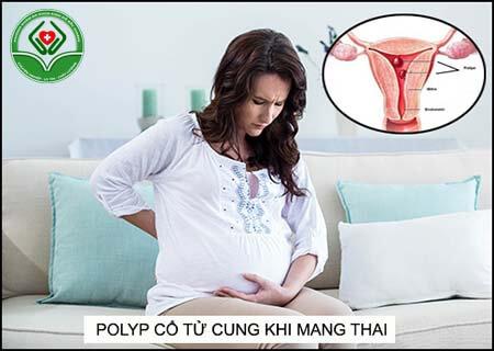 polyp cổ tử cung ảnh hưởng như thế nào đến khả năng mang thai