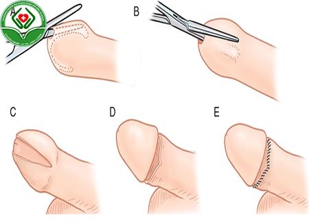 quy trình cắt dài bao quy đầu không đau