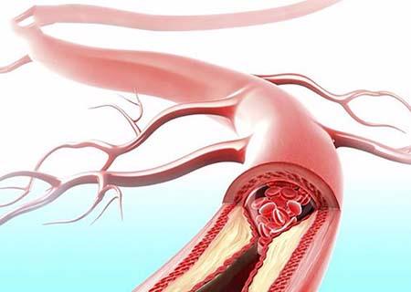 tắc mạch máu cổ tử cung