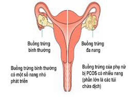 Viêm buồng trứng là một trong những bệnh dẫn đến vô sinh nữ