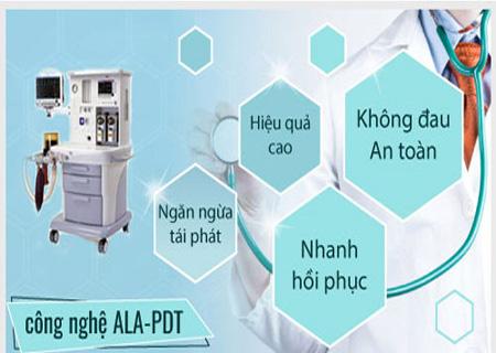 Phương pháp ALA-PDT hỗ trợ điều trị sùi mào gà hiệu quả
