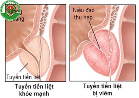 bệnh viêm tiền liệt tuyến là gì