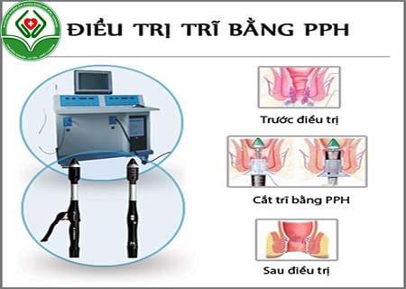 Điều trị PPH