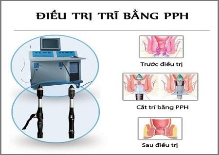 Phuong-phap-cat-tri-hieu-qua
