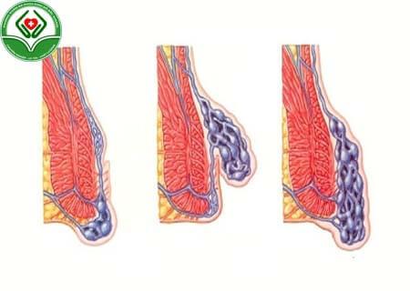 Ưu điểm của phương pháp điều trị PPH
