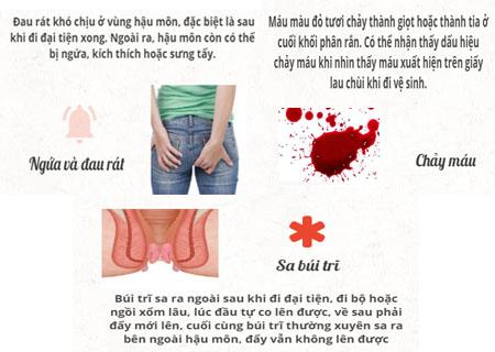 Biểu hiện của bệnh trĩ ở nữ giới