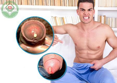 Biểu hiện bệnh lậu ở nam giới