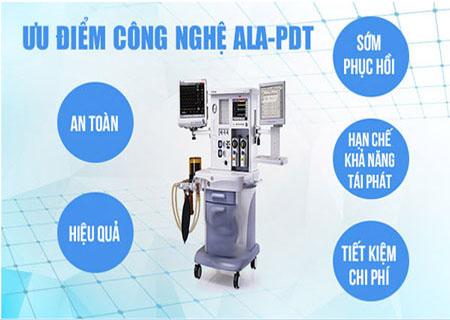 Phương pháp ALA - PDT chữa sùi mào gà hiệu quả