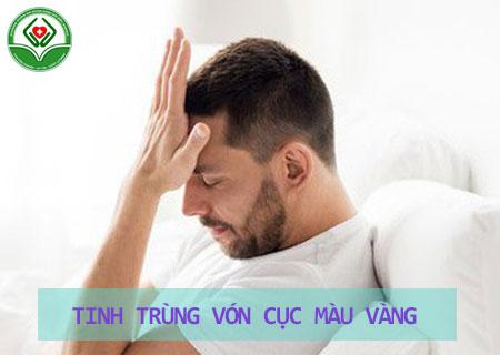 tinh-trung-co-mau-vang-von-cuc-la-bi-lam-sao