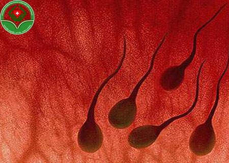tinh trùng có máu là bệnh gì
