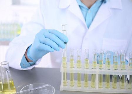 Xác định viêm bàng quang thông qua xét nghiệm nước tiểu