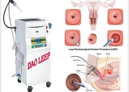 Phương pháp Dao Leep chữa viêm lộ tuyến