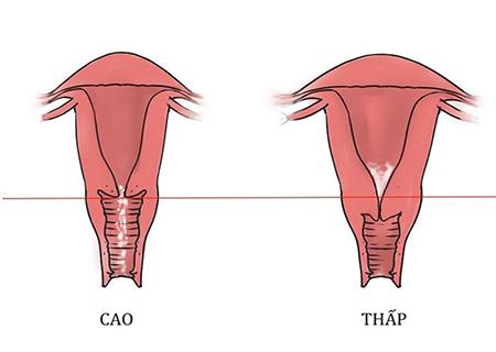 Cổ tử cung cao ảnh tới khả năng sinh sản