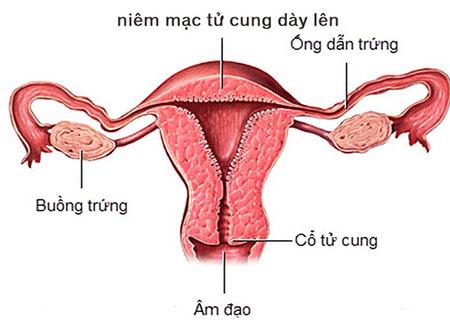Niêm mạc tử cung dày do nhiều nguyên nhân