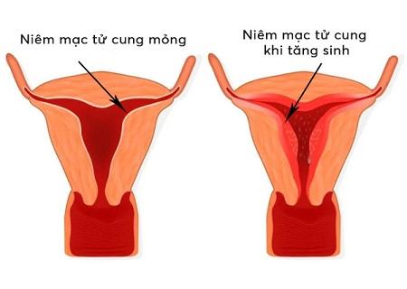 Niêm mạc tử cung mỏng ảnh hưởng tới khả năng mang thai của phụ nữ