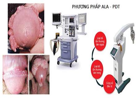 Phương pháp ALA-PDT chữa sùi mào gà