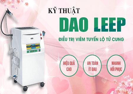 Chữa viêm lộ tuyến bằng phương pháp Dao Leep