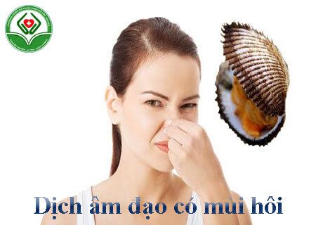 Dịch âm đạo có mùi hôi