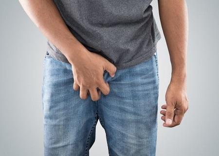 Ngứa là biểu hiện nấm vùng kín nam giới