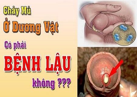 Dương vật bị ngứa và chảy mủ là dấu hiệu của bệnh lậu