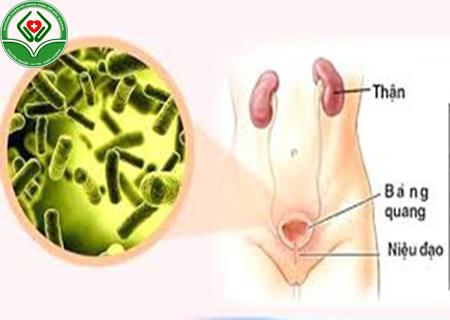 bệnh viêm đường tiểu