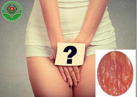 Chuỗi hạt ngọc âm vật ở nữ giới là gì?