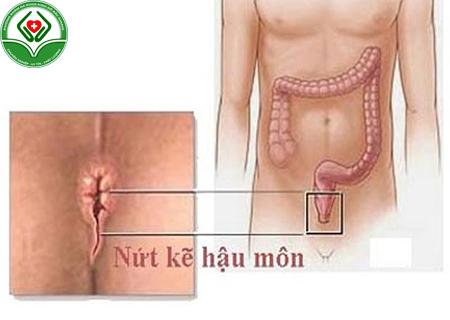 nguyên nhân bị bệnh mạch lươn