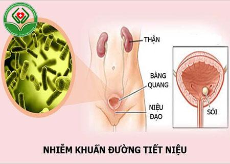 Bệnh nhiễm khuẩn tiết niệu là gì?